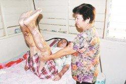 邱文偕在妻子廖春蘭的協助下,示範其每日進行的物理治療動作,以確保大腿肌肉不會退化萎縮。