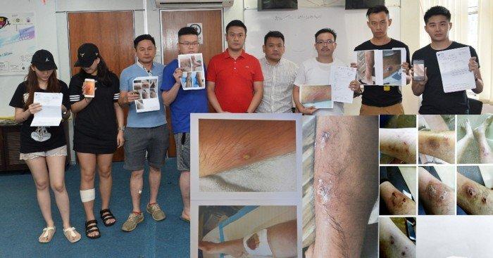 感染細菌致腿部潰爛 7受害者投訴按摩院