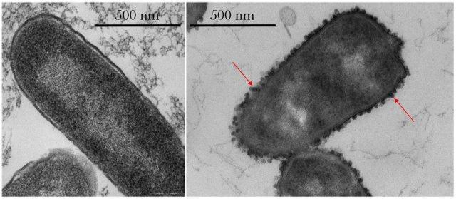 左图为细菌在地球的对照图,右图为太空实验组。太空中的细菌在细胞壁外生出外膜囊泡,免受抗生素攻击。。