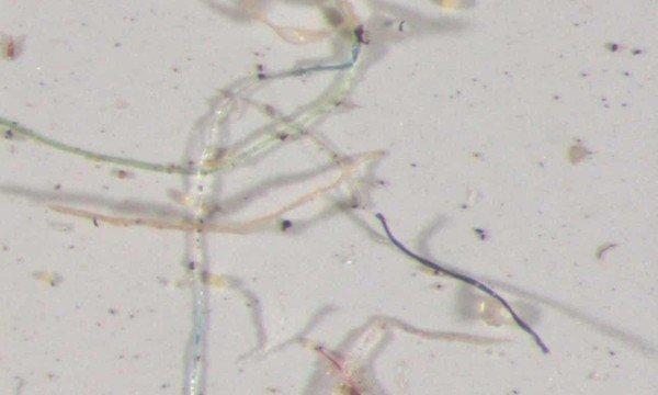 科罗拉多州采集的雨水经显微镜可见,其中含有多种颜色塑胶微粒。