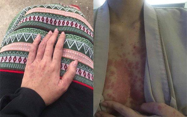 克德米的四肢、胸口都长满红疹。(图取自Facebook/ToqTaeq Kerdmee)
