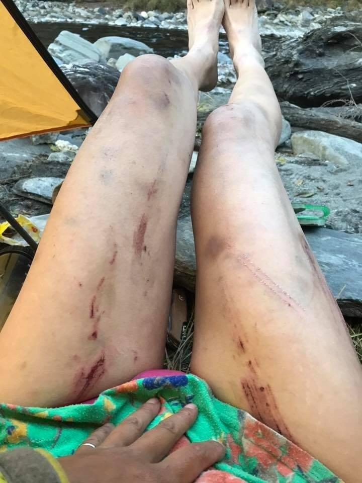 吴季芸12月24日曾发文分享25天的登山路线,事后却在留言处发了修长双腿满是擦伤、瘀青的照片。