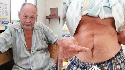 曾国洋(左)因贫病迫于无奈,向民众求助。右图为其动手术后,肚子的疤痕依然清晰。