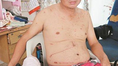 捱过不少手术刀的邱业明,肚皮上留下多道显眼的缝线疤痕,目前他仅盼望能在社会人士的协助下,度过难关,早日痊愈及自力更生。