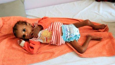 一名营养不良、瘦骨如柴的也门孩童躺在首都萨那一间医院的病床上。多个联合国组织日前发布报告指,零饥饿目标正面临巨大挑战,许多经济增长放缓的国家,饥饿水平正在上升。