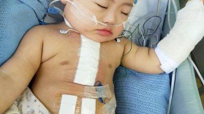 刘㭏家手术成功,目前在医院观察。